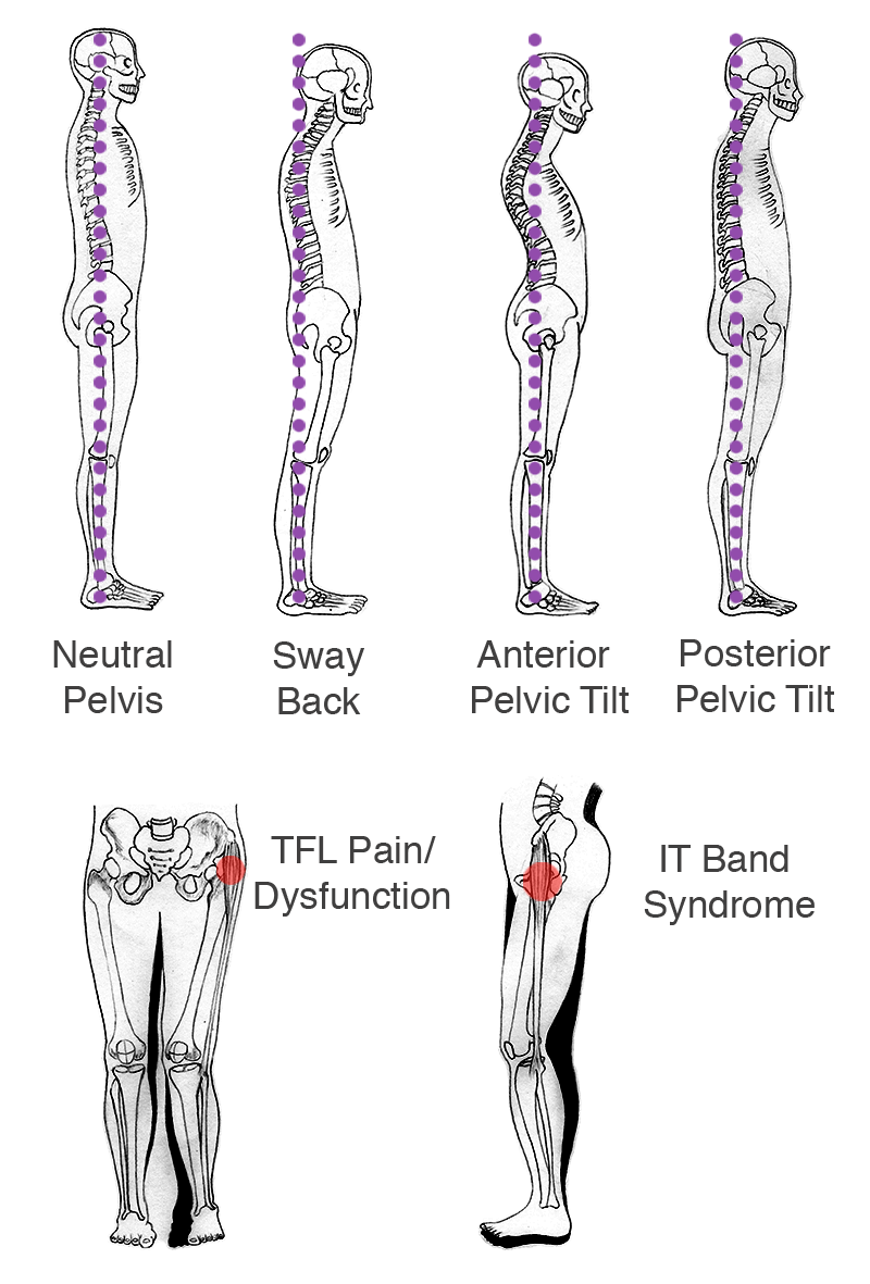 if there is right or left hip dominance, there is usually pain in the  opposite hip or quadratus lumborum (ql), sciatica, pain or stiffness in the  lower back